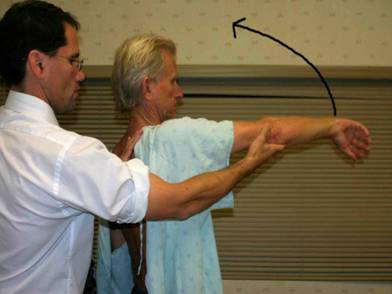 impingement-syndrome-of-shoulder-tendons-of-the-muscles